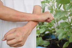 Asiatische Männer sind ungefähr 40 Jahre alt Â-Insektenstich-Ursachenblasen Lizenzfreie Stockfotografie