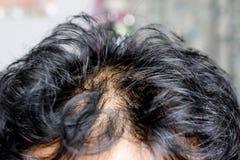Asiatischer männlicher Kopf mit Haarausfall lizenzfreie stockfotos