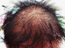 Asiatischer weiblicher Kopf mit Haarausfallproblem stockbilder