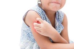 Asiatisk flickaskrapa klådan med handen hennes arm på grund av mosquit arkivfoton