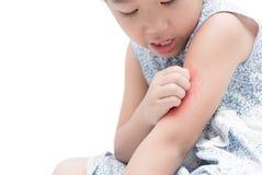 Asiatisk flickaskrapa klådan med handen hennes arm på grund av mosquit Royaltyfri Foto