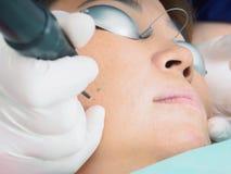 Asiatisk kvinnapatient på laser-tillvägagångssätthud som resurfacing i estetisk medicin royaltyfri bild