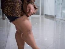 Asiatiska lår av feta kvinnor Hon bär kortslutningar och lång-muffa skjortor för att se överskottfett royaltyfri fotografi