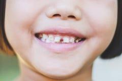 Asiatiska murkna tänder för unge` s Arkivfoton