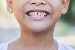 Asiatiska murkna tänder för unge` s Arkivbild