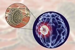 Aspergilloma της άποψης εγκεφάλου και κινηματογραφήσεων σε πρώτο πλάνο Aspergillus μυκήτων Στοκ φωτογραφία με δικαίωμα ελεύθερης χρήσης