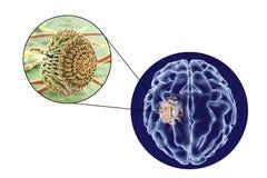Aspergilloma της άποψης εγκεφάλου και κινηματογραφήσεων σε πρώτο πλάνο Aspergillus μυκήτων Διανυσματική απεικόνιση