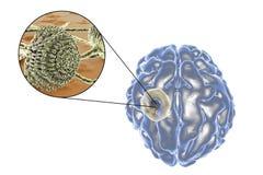 Aspergilloma της άποψης εγκεφάλου και κινηματογραφήσεων σε πρώτο πλάνο Aspergillus μυκήτων Στοκ Εικόνες