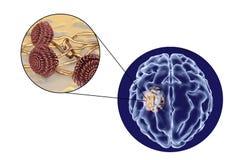 Aspergilloma της άποψης εγκεφάλου και κινηματογραφήσεων σε πρώτο πλάνο Aspergillus μυκήτων Στοκ φωτογραφίες με δικαίωμα ελεύθερης χρήσης