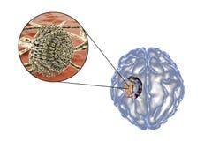 Aspergilloma της άποψης εγκεφάλου και κινηματογραφήσεων σε πρώτο πλάνο Aspergillus μυκήτων Ελεύθερη απεικόνιση δικαιώματος