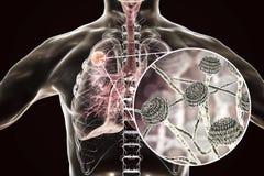 Aspergilloma της άποψης πνευμόνων και κινηματογραφήσεων σε πρώτο πλάνο Aspergillus των μυκήτων Διανυσματική απεικόνιση