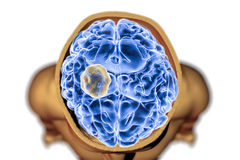 Aspergilloma του εγκεφάλου Στοκ Φωτογραφίες