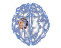 Aspergilloma του εγκεφάλου Διανυσματική απεικόνιση