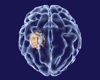Aspergilloma του εγκεφάλου Στοκ Φωτογραφία