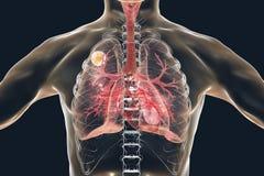 Aspergilloma του πνεύμονα Διανυσματική απεικόνιση