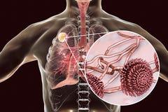 Aspergilloma του πνεύμονα Στοκ Εικόνες