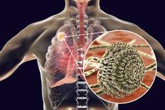 Aspergilloma του πνεύμονα Στοκ εικόνα με δικαίωμα ελεύθερης χρήσης