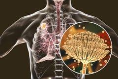 Aspergilloma του πνεύμονα Στοκ φωτογραφία με δικαίωμα ελεύθερης χρήσης