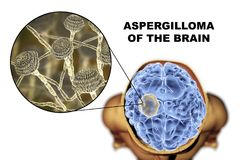 Aspergilloma of the brain and close-up view of fungi Aspergillus. 3D illustration. An intracranial lesion produced by fungi Aspergillus in immunocompromised Stock Photography