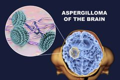 Aspergilloma of the brain and close-up view of fungi Aspergillus. 3D illustration. An intracranial lesion produced by fungi Aspergillus in immunocompromised Royalty Free Stock Image