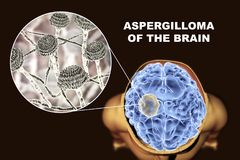 Aspergilloma of the brain and close-up view of fungi Aspergillus. 3D illustration. An intracranial lesion produced by fungi Aspergillus in immunocompromised Stock Photo