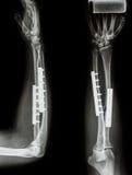 Asse di frattura del raggio & dell'osso ulnare. Fotografia Stock