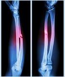 Asse polverizzata di frattura dell'osso ulnare Fotografia Stock Libera da Diritti