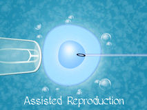 Assisted reproduction. Illustration of human assisted reproduction Stock Images