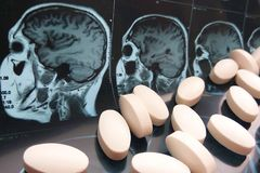Assorted colorful pharmaceutical medicine pills, capsules and tablets on magnetic head and brain resonance scan background stock photos