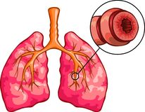 Asthma. Vector medical illustration of Human Lungs and Asthma Stock Photo