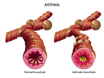 Asthma. Medical illustration of the effects of the Asthma Royalty Free Stock Photo