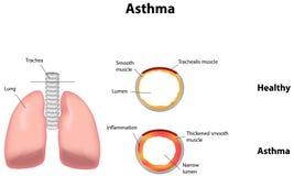 asthma Imagens de Stock