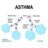 asthma alvéolos e bronchiole ilustração royalty free