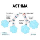 Asthma. alveoli and bronchiole. Normal and asthmatic. Part of Human lungs Stock Photography