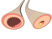 Asthma bronchiales. Vector illustration of a bronchi cut Stock Photos