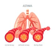 Asthma disease vector icon in flat style. Asthma disease concept. Vector illustration in flat style for medical atlases, articles, infographics etc royalty free illustration
