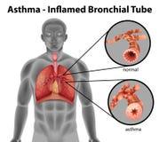 Asthma-entflammtes bronchiales Rohr Stockfotos