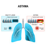 Asthma. Humans lungs and bronchi. Asthma is a chronic inflammatory disease of the airways that is characterized by narrowing of the airways bronchospasm and Royalty Free Stock Image