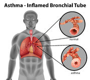 Asthma-inflamed bronchial tube Stock Photos