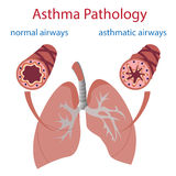 Asthma pathology. Vector illustration of lungs and airways. Normal and asthmatic Royalty Free Stock Photo