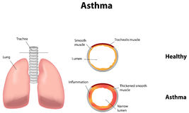 asthme Images stock