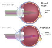 Astigmatism. A common eye defect, eps10 Royalty Free Stock Photography