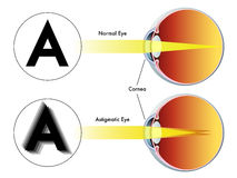 Astigmatism Stock Photography