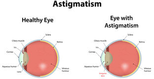 Astigmatism Royalty Free Stock Photography
