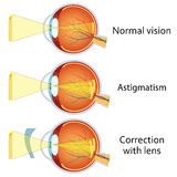 Astigmatism corrected by a cylindrical lens. Royalty Free Stock Photo
