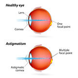 Astigmatism Stock Photos