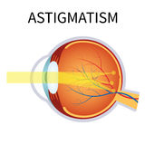Astigmatism. Eyesight problem, blurred vision. Stock Photography