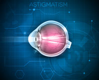 Astigmatism, eyesight problem Royalty Free Stock Photos