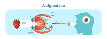 Astigmatism vector illustration diagram, anatomical scheme. Medical educational information stock illustration