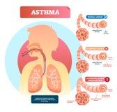 Astma vectorillustratie Ziekte met de ademhaling van problemendiagram royalty-vrije illustratie